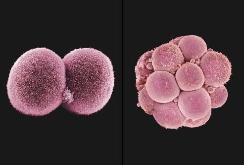PRinc_rm_composite_SEM_of_cell_division