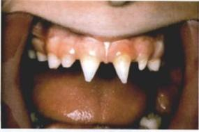 porphyria-teeth